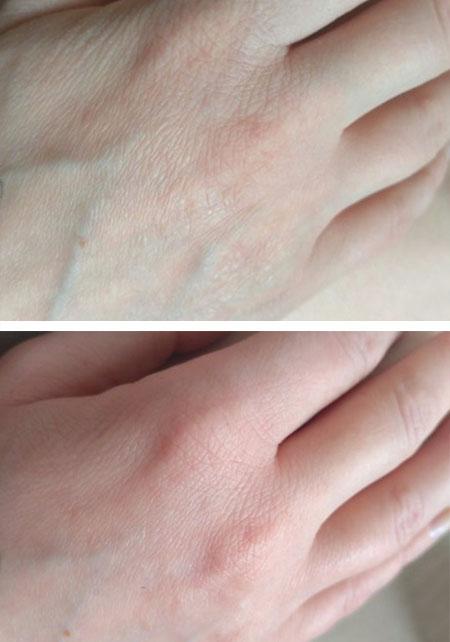 крем для сухой потрескавшейся кожи рук